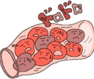 血管ドロドロ